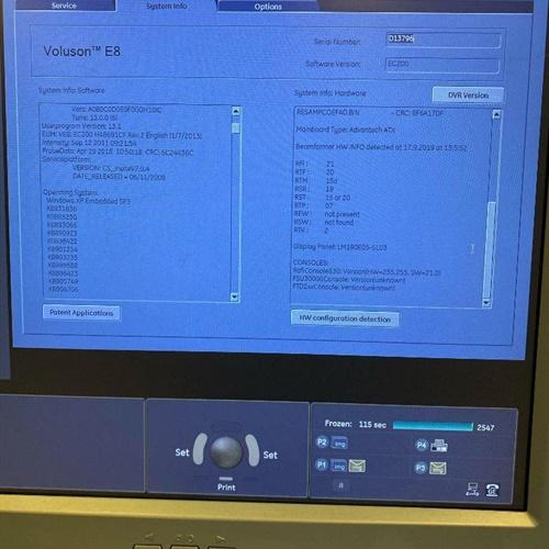 2011 Voluson E8 Ultrasound (Refurbished)